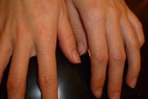 Сыпь на пальцах рук - Рецепты здоровья