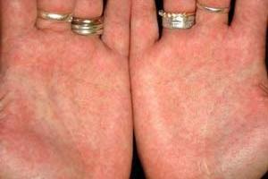 Как лечить псориаз появившийся на ногтях