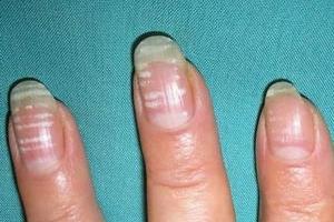 Ногти означают