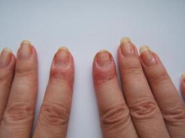 Что делать когда преет кожа между пальцами ног